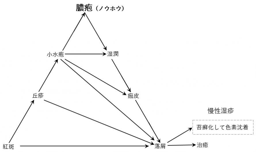 湿疹三角形